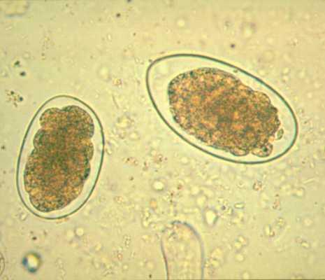 Helminthes intestinaux, Ver Parasite, , ,